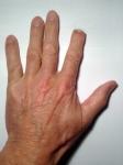 Lost a fingertip? Call an axolotl.